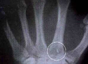 Implant découvert dans une main...origine inconnue!
