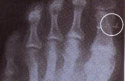 implant extraterrestre 006