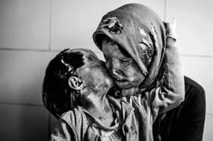 Photo d'une fillette de 3 ans et de sa mère après une attaque à l'acide par leur père /époux...