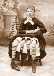 En 1868, la jeune américaine Myrtle Corbin naît avec un bassin et deux jambes supplémentaires. Sa particularité unique lui vaudra de passer ses premières années dans un cirque.